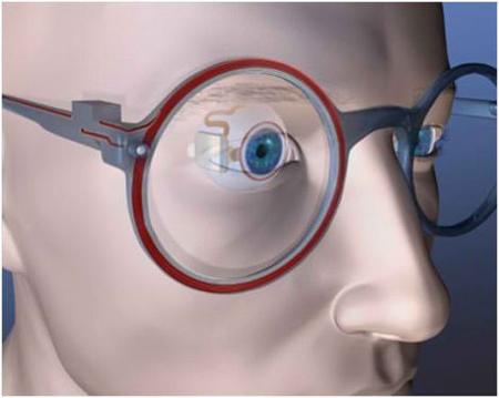 prothèse-rétinienne-santecool