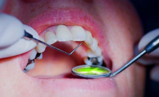 mercure-dentaire-un-vrai-scandale-santecool