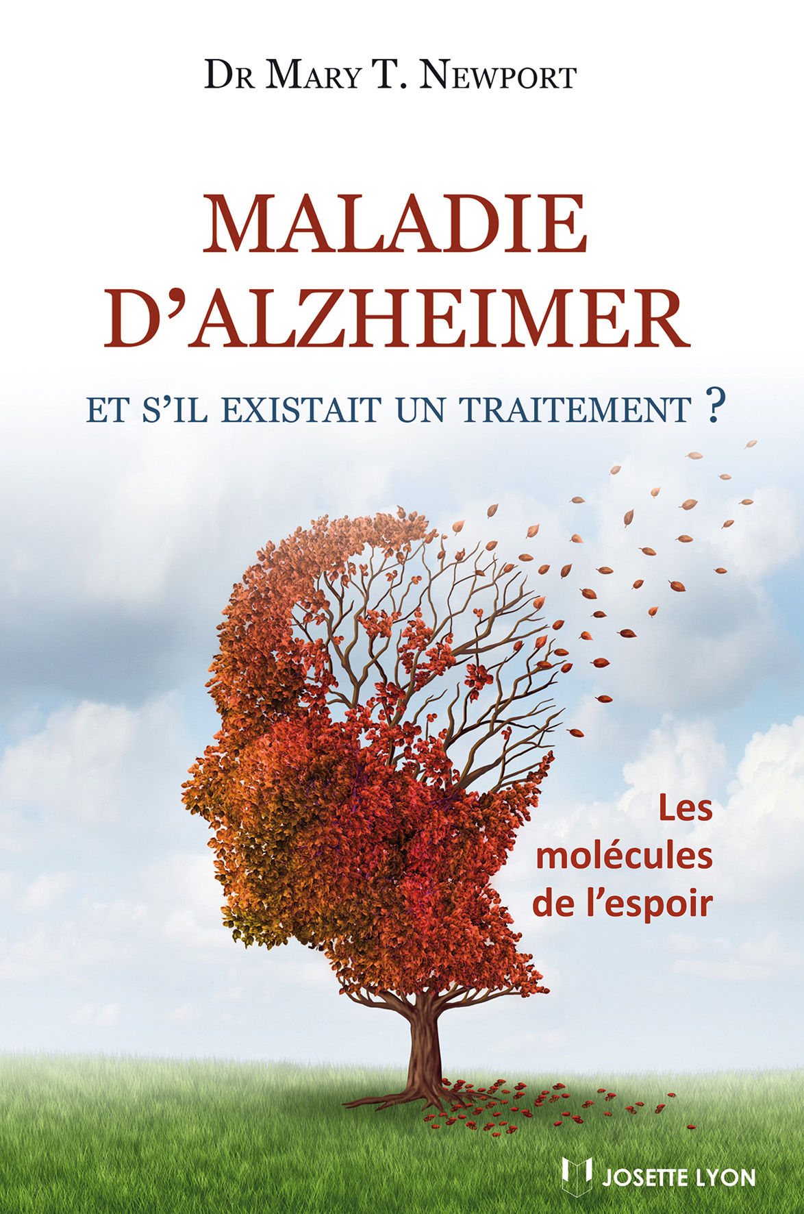 Alzheimer-traitement-santecool