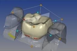 Quand-l-imprimante-3D-vient-au-secours-d-un-chirurgien-cranio-maxillo-facial-santecool