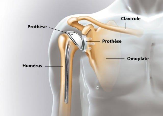 Révolution-pose-de-prothèse-de-l-épaule-en-ambulatoire-santecool
