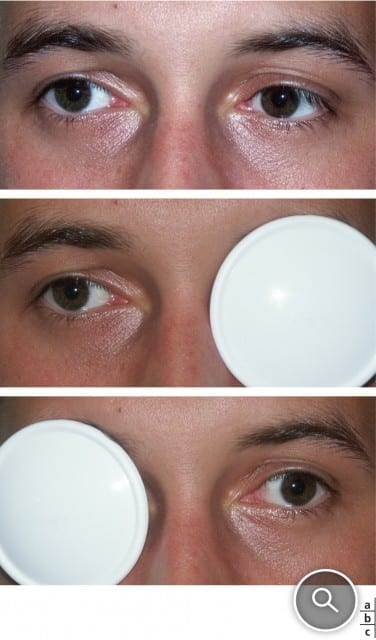 Amblyopie-rééduquer-un-œil-paresseux-santecool