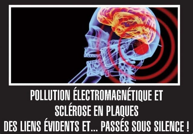 Sclérose-en-plaques-et-pollution-électromagnétique-santecool