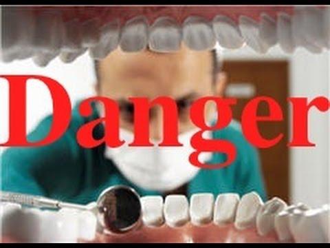 L-Europe-continue-de-minimiser-le-risque-sanitaire-des-amalgames-dentaires-santecool
