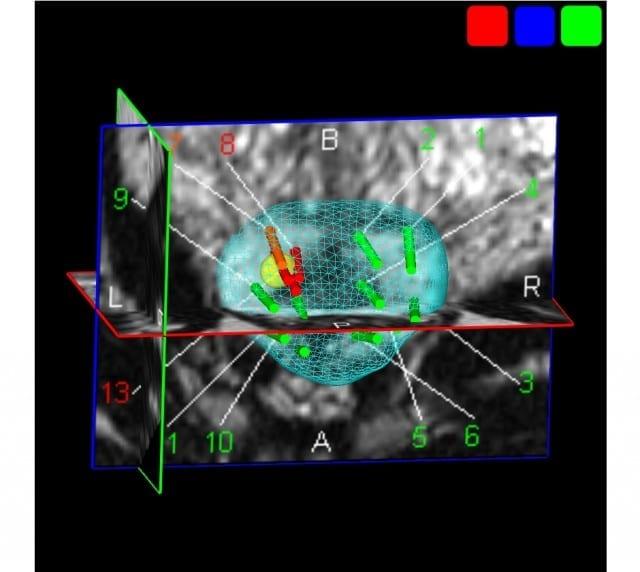 La-cartographie-3D-nouvel-outil-indispensable-en-urologie-santecool