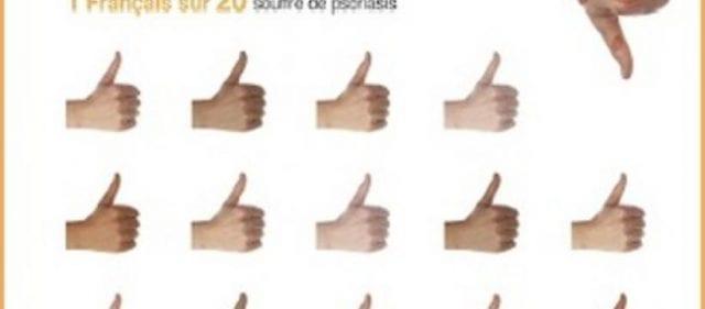 45%-des-Français-garderaient-leurs-distances-avec-les-personnes-atteintes -de-psoriasis-santecool