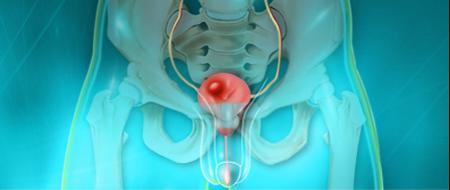 Cancer-de-la-vessie-de-nouvelles-voies-de-traitement-santecool