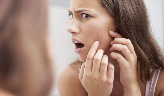 Soigner-les-problèmes-de-peau-à-base-de-bonnes-bactéries-c-est-possible-santecool