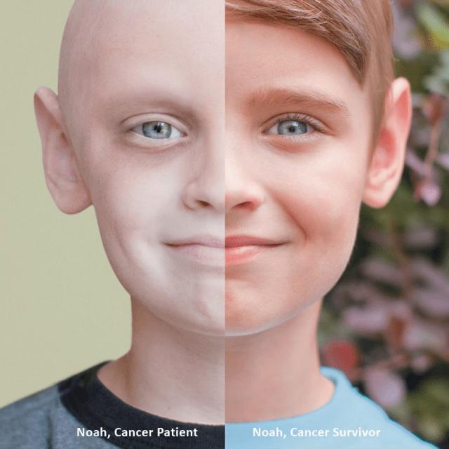 Le diagnostic moléculaire : un outil précieux pour mieux traiter les cancers de l'enfant