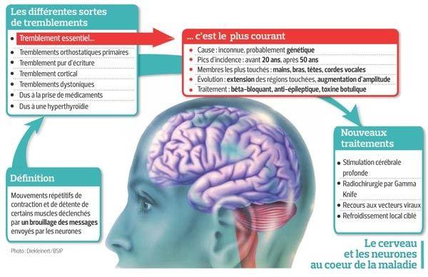 Quels-sont-les-traitements-contre-Parkinson-santecool