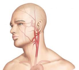 Réduire-considérablement-le-risque-d-infarctus-du-myocarde-et-d-AVC-santecool