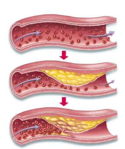 comment-les-arteres-se-protegent-elles-de-latherosclerose-santecool