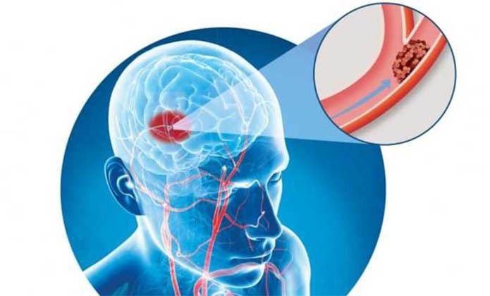 A l'occasion de la journée mondiale des accidents vasculaires cérébraux (ce dimanche 29 octobre) Odoxa a réalisé un sondage pour la Fondation sur la recherche contre les AVC sur les connaissances et les réflexes des Français. Voici les résultats du sondage ainsi que l'analyse et le point de vue du Professeur de neurologie Jean-Louis Mas*.