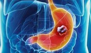 Des chercheurs de l'Institut Pasteur et du CNRS viennent d'identifier de nouvelles stratégies utilisées par la bactérie Helicobacter pylori pour infecter les cellules. En ciblant spécifiquement les mitochondries, cette bactérie, bien qu'étant extracellulaire, peut intensifier l'infection subie par l'hôte. Alors que la bactérie H. pylori est associée à la majorité des cas de cancers gastriques, ces découvertes permettent aujourd'hui d'envisager de nouvelles stratégies de lutte contre cette infection et les pathologies gastriques associées. Les résultats de cette étude sont publiés le 21 novembre dans la revue Scientific Reports.
