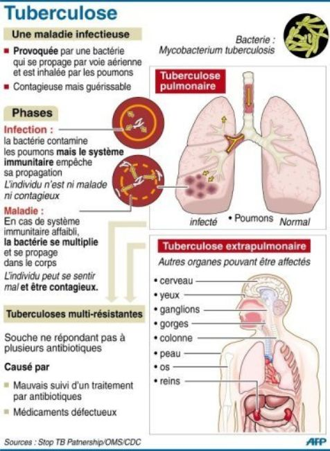 Tuberculose Et Antibior 233 Sistance Des Chercheurs Lillois