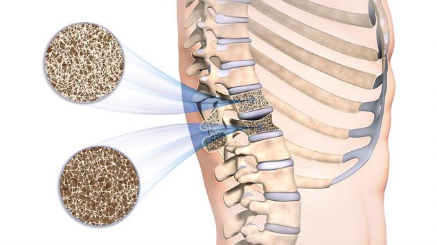 Ostéoporose et médecines douces : une solution gagnante