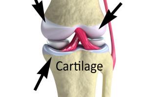 Une solution injectable qui va révolutionner la médecine dans la réparation du cartilage