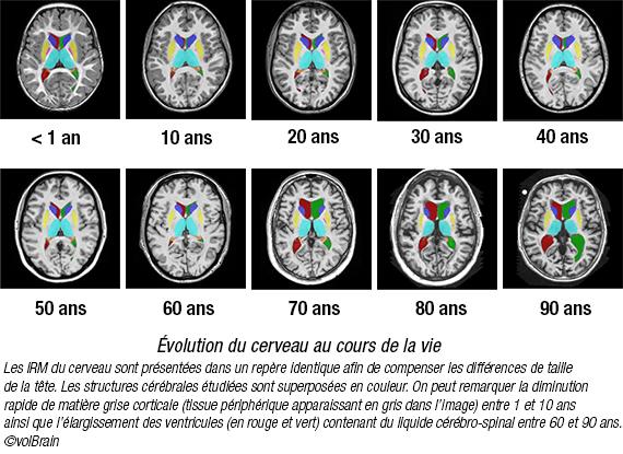 Comment notre cerveau change-t-il au cours de notre vie ?