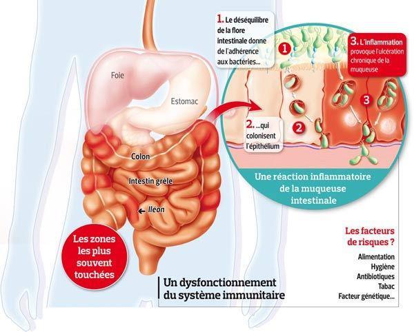 De nouveaux traitements pour la maladie de Crohn