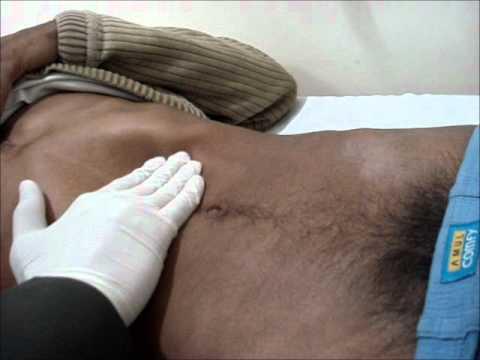 Méningite à méningocoques : mal de ventre, un symptôme qui doit alerter