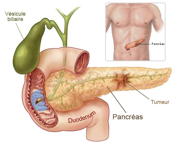 Cancer du pancréas, l'épigénétique ouvre des perspectives de traitement