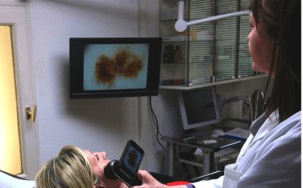 Détecter un mélanome en cabinet grâce à l'intelligence artificielle