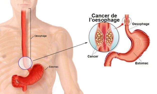 Les cancers de l'œsophage ont été multipliés par 7 depuis 1998