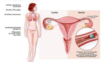 IST : la HAS recommande un dépistage systématique de l'infection à Chlamydia trachomatis
