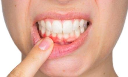 Soulager une gingivite avec les médecines douces