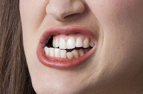 Bruxisme, desserrez les dents !