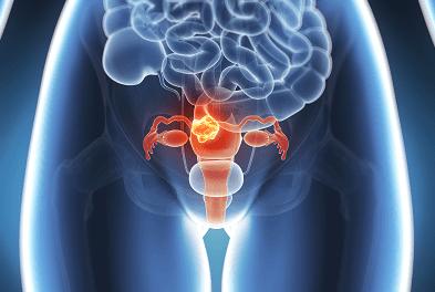 Lancement de Mon Réseau® Cancer Gynéco