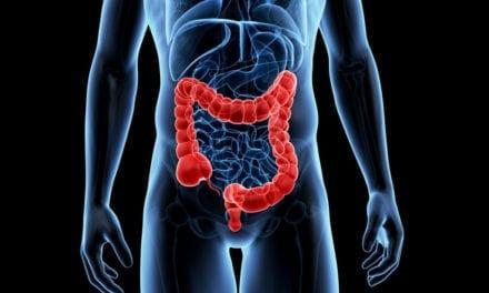 Cancer colorectal, la génétique au service de la prévention et du dépistage précoce