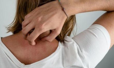 Allergies cutanées, il faut diminuer les substances chimiques dans les textiles