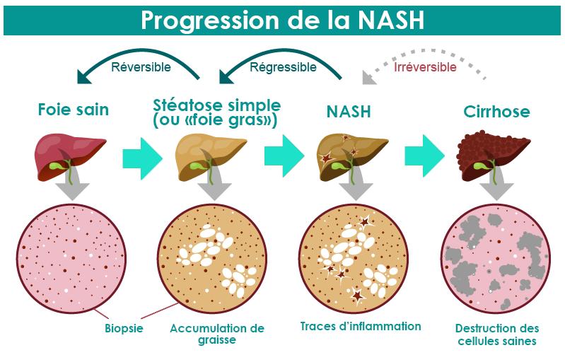 Un traitement pour la NASH ou maladie du foie gras?