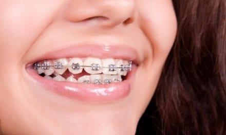 A quel âge un enfant peut avoir un appareil dentaire ?