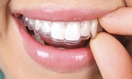 Comment se passe l'orthodontie de l'adulte?