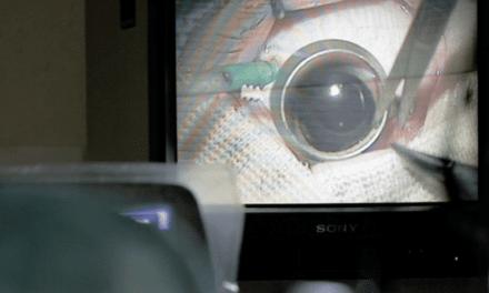 Une thérapie génique pour redonner la vue à des patients atteints d'une maladie rare