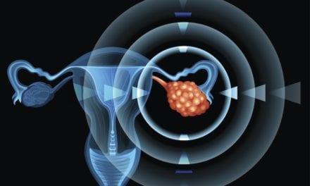 Grande avancée pour le cancer de l'ovaire