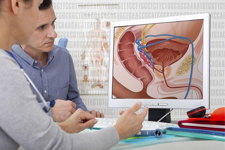 Une nouvelle combinaison de traitements contre le cancer de la prostate