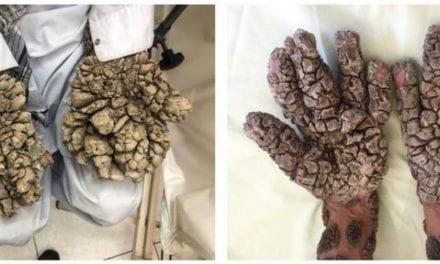 Identification d'une première cause génétique pour le syndrome de l'homme-arbre
