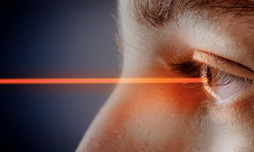 Tout savoir sur la chirurgie oculaire LASIK